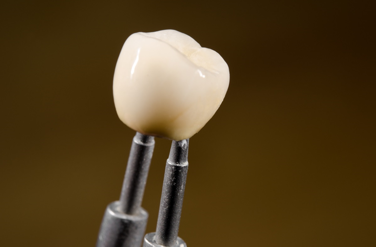 A Guide To Post-Fitting Care For Dental Implants