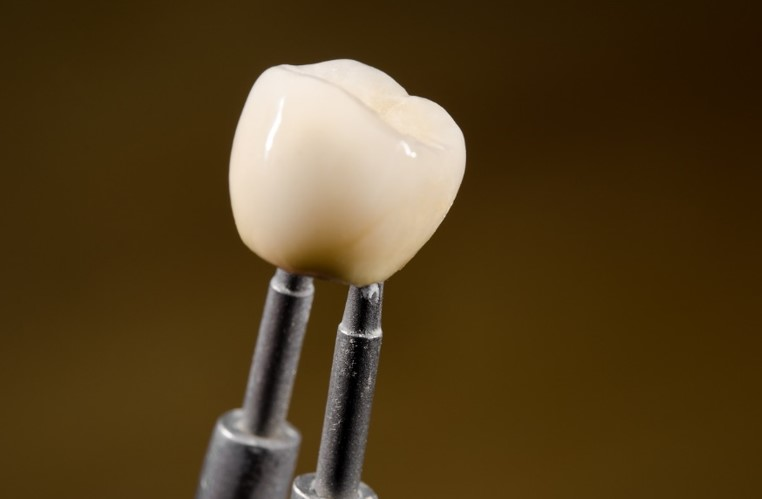 What Are Dental Implants And How Are They Performed In A Clinic?